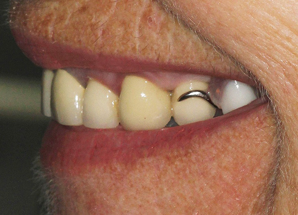 Unfortunately, in some cases, the attachment of the clasp prosthesis is visible with a smile.