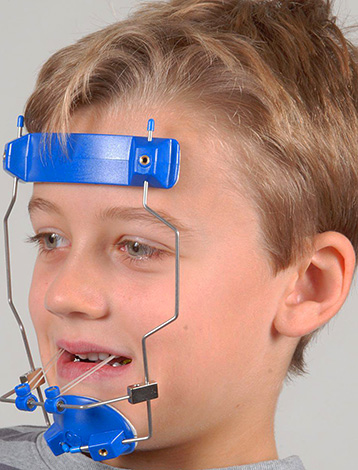 Wearing such an extraoral device allows the child to move the upper jaw forward.