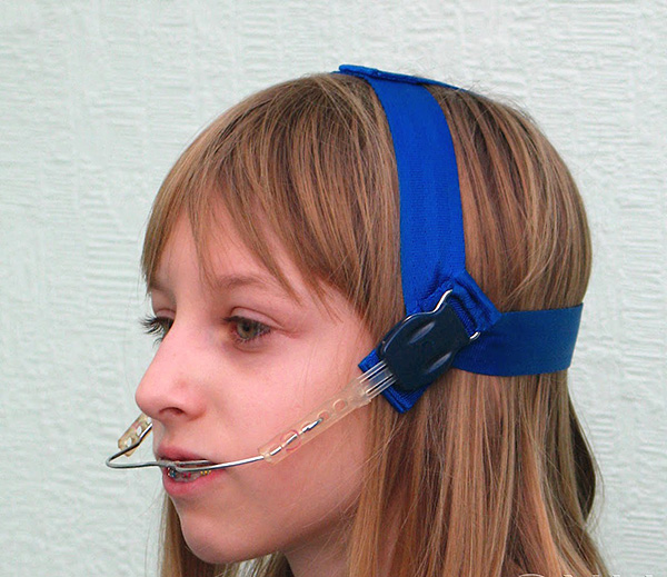 The facial arch is a very simple, but very effective apparatus for the correction of bite.