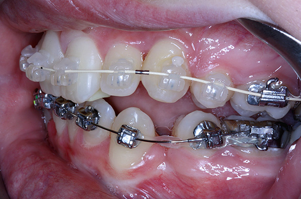 When wearing braces, there may be a number of problems that it is useful to know in advance ...