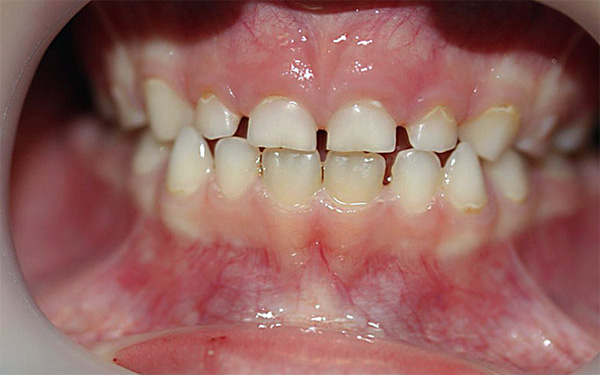 At a certain stage, the milk teeth may undergo significant physiological abrasion.