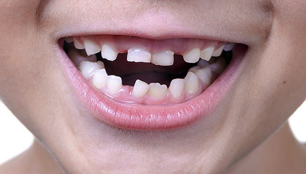 During the period of changing milk teeth to constant bite, the baby may be far from ideal.