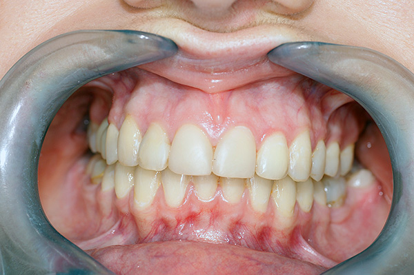 Such a bite is considered a kind of standard to which orthodontists aspire to when treating patients.