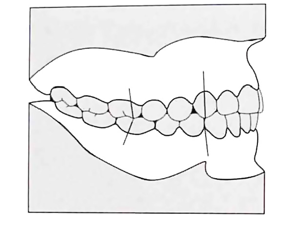 The closure of the dentition in class I of Angle