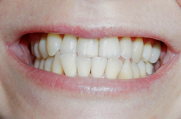 With direct bite with age, there is a strong erasure of the cutting edges of the upper and lower incisors.