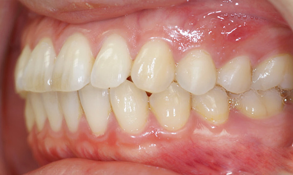 In case of biprognatic bite, the upper and lower front teeth are strongly bent forward.