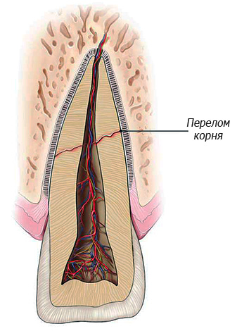Fracture of the tooth root is an absolute indication for its removal.